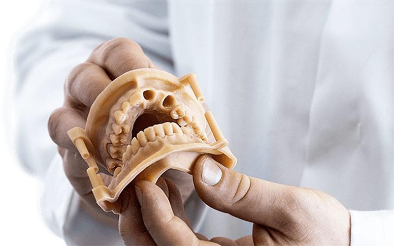Impresión 3D de precisión para odontología digital