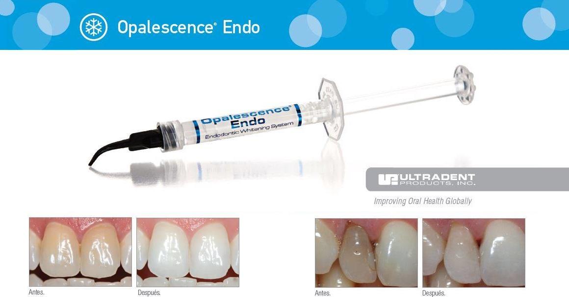 Una solución de blanqueamiento 100% efectiva para dientes no vitales: Opalescence Endo