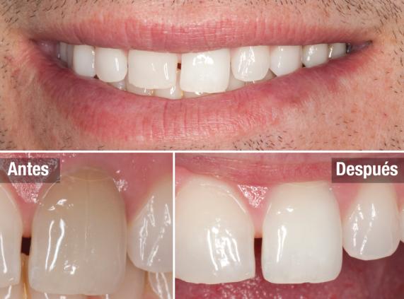 ¡Cómo blanquear con Opalescence 1 o varios dientes oscurecidos y hacerlos brillar!