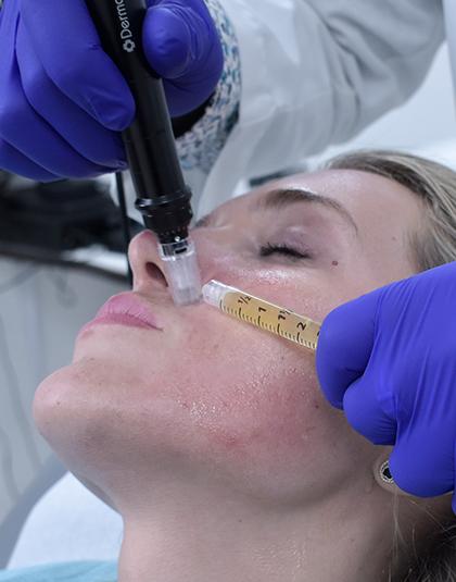https://www.estetikamedica.cl/microneedling-al-producir-las-microinyecciones-el-cuerpo-comienza-a-autorepararse-produciendo-colageno