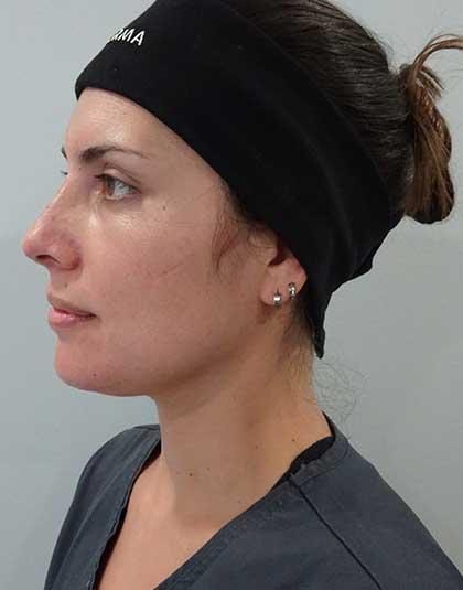 https://www.estetikamedica.cl/tecnica-de-rinomodelacion-con-acido-hialuronico