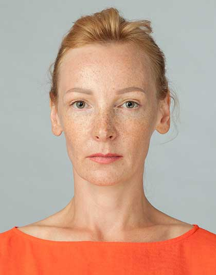 https://www.estetikamedica.cl/como-eliminar-las-manchas-con-la-mesoterapia-despigmentante