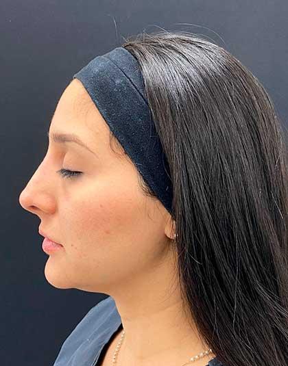 https://www.estetikamedica.cl/como-respingar-la-nariz-sin-cirugia