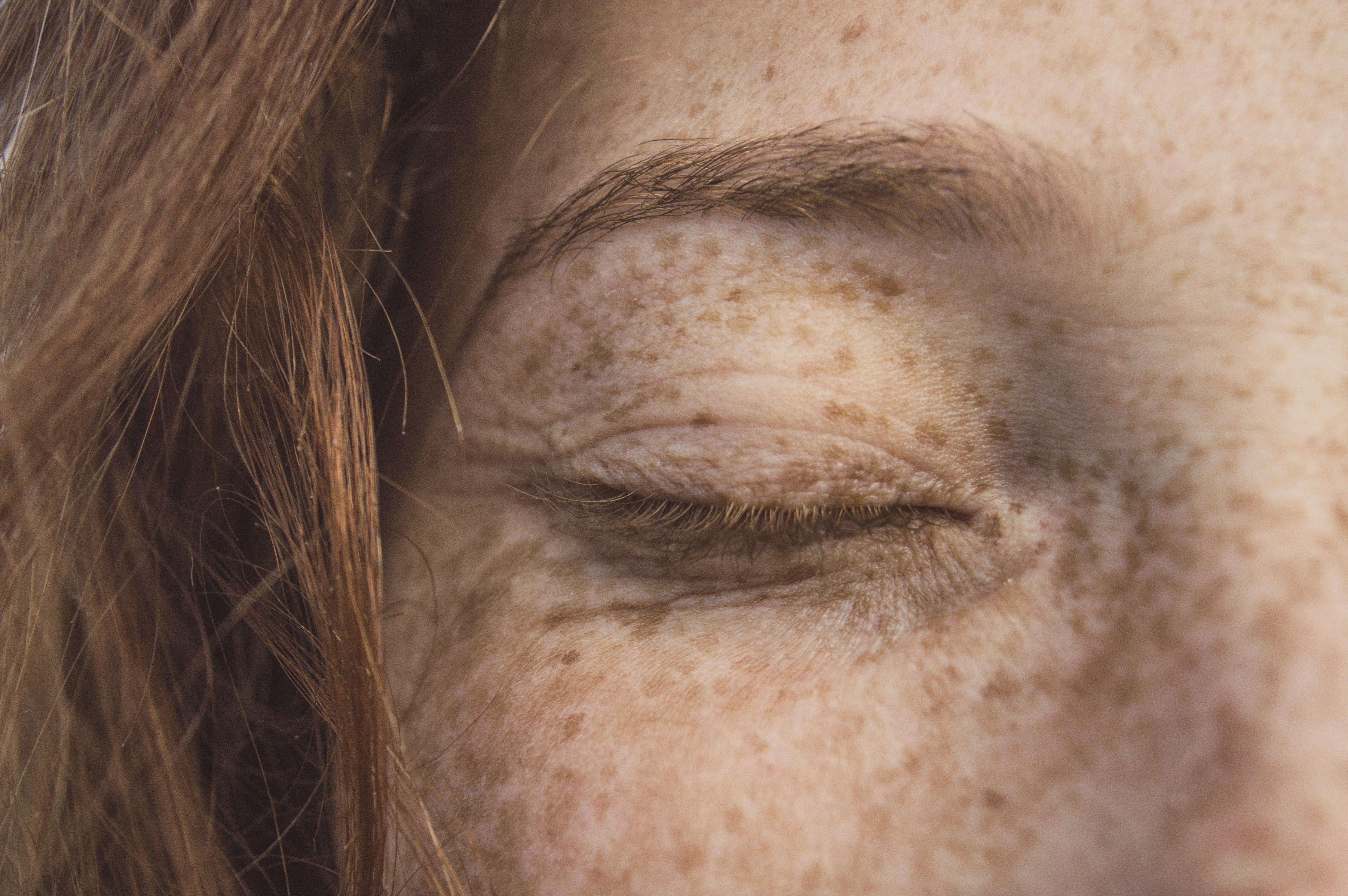 Poderá a luz azul provocar danos na pele?