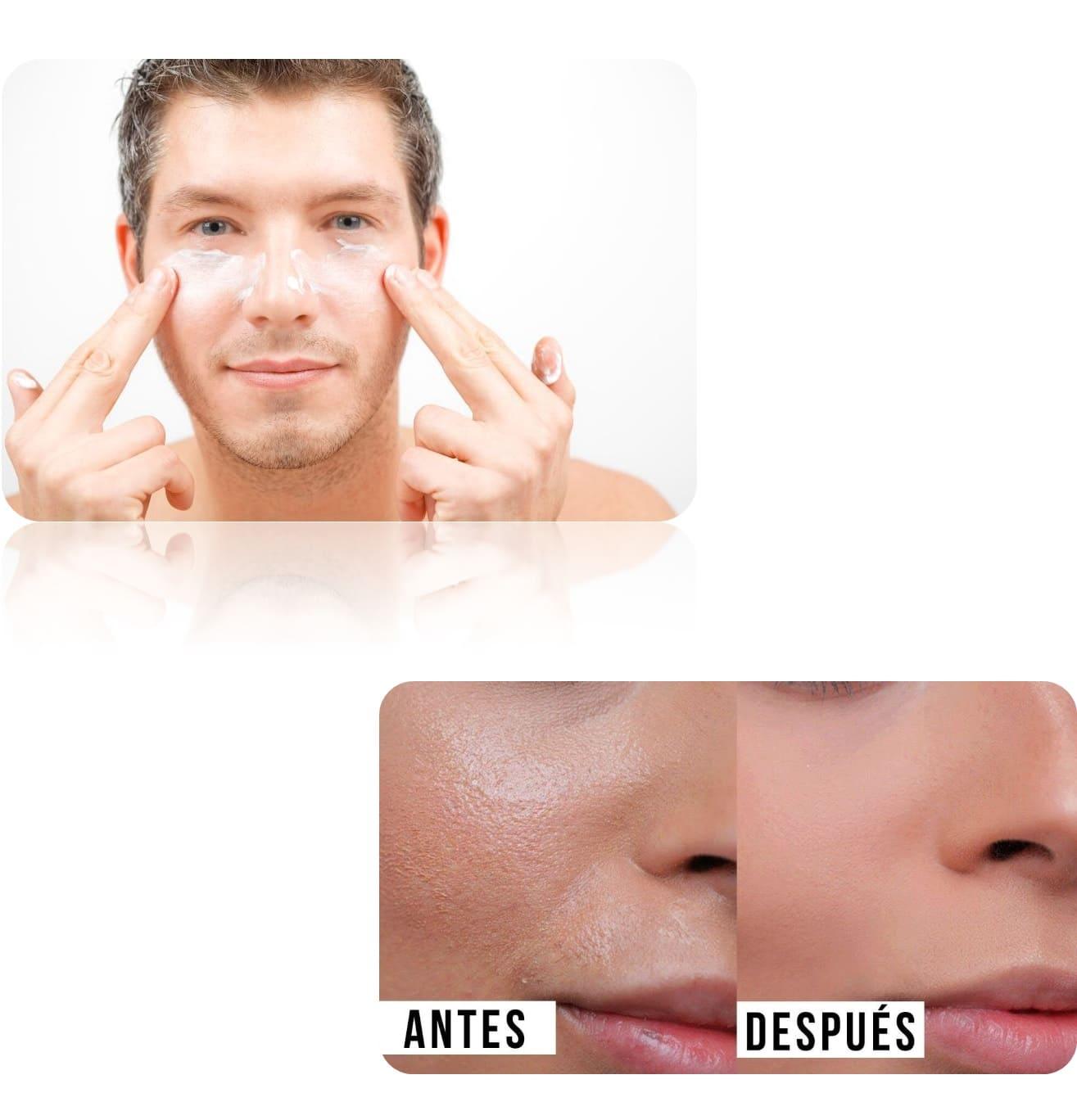 Gel limpiador + Tónico astringente + crema matificante pure skin pack