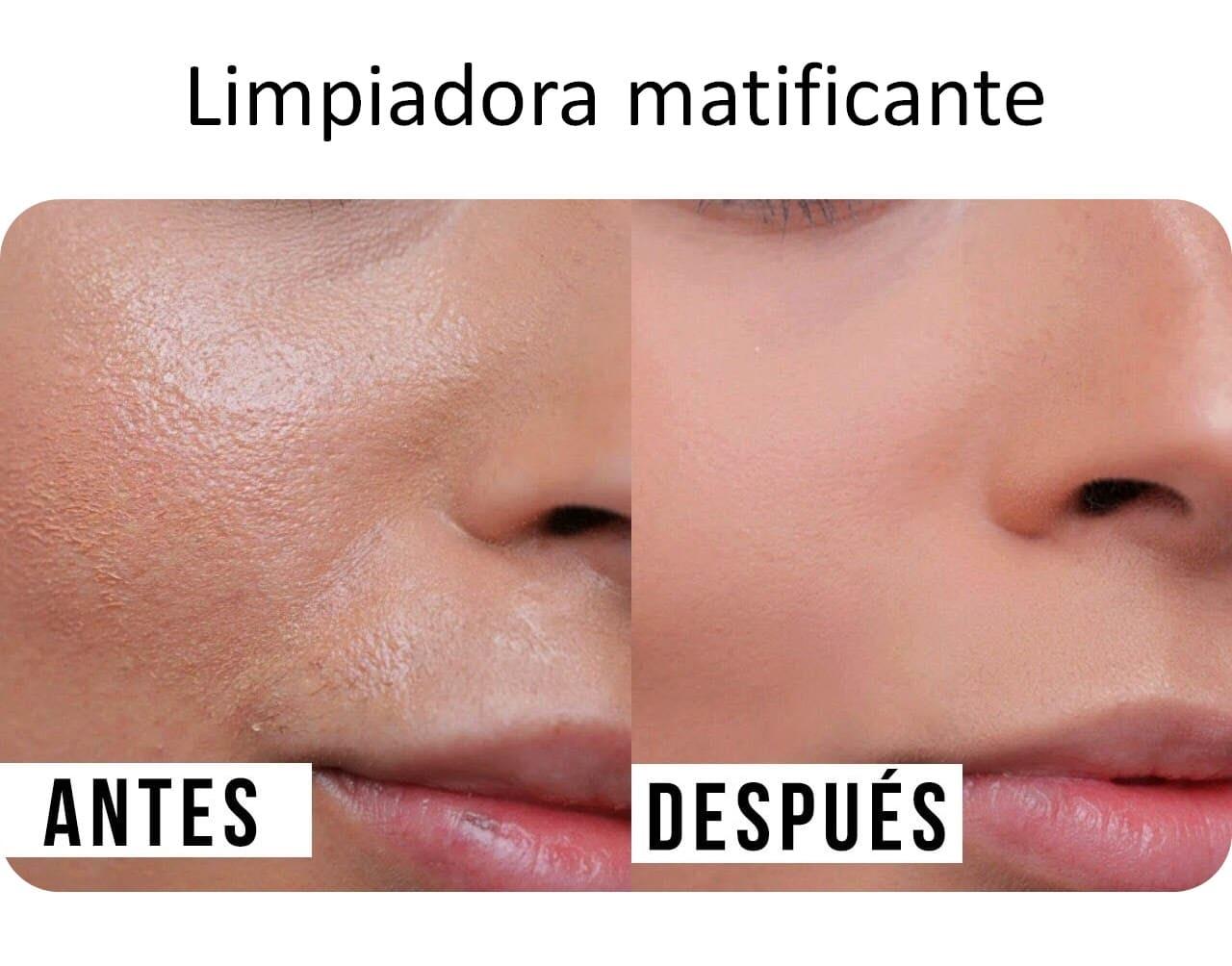 Jabón carbon activado negro barra africano natural anti acné cara Chile