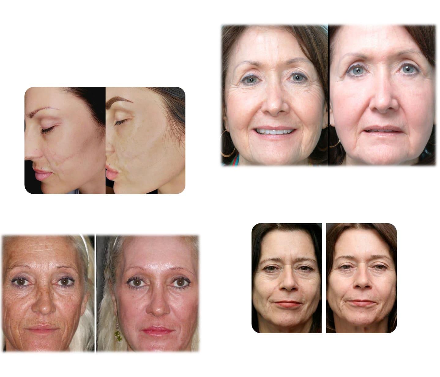 Serum reparador celular Dr. Fontboté cicatrices revitalizante anti edad arrugas