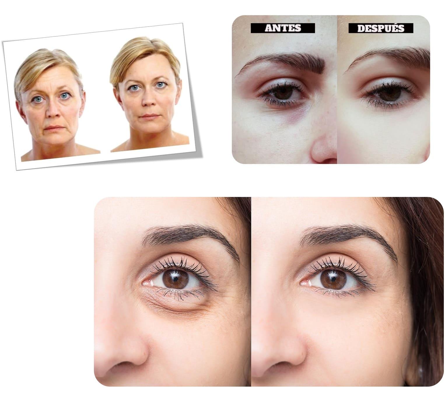 Crema ácido hialurónico Dr. Fontboté + Suero roll on contorno ojos