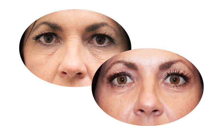 Crema ageless reestructurante Fontboté antiarrugas facial 50 ml