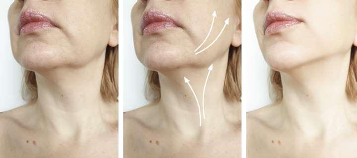 Crema colágeno elastina tensora antiarrugas facial antiedad flacidez