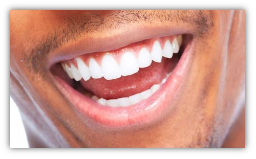 Pasta blanqueamiento dental pulidora blanqueadora manchas dientes sarro