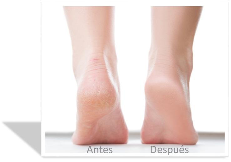 Piedra pomez Chile escofina lima pies elimina durezas removedor callos