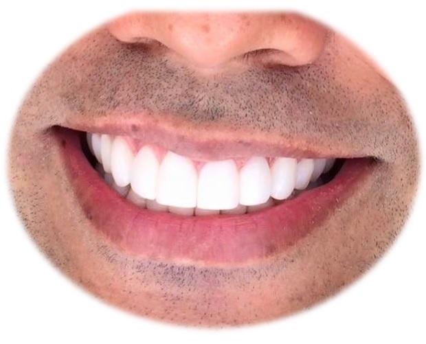 Cepillo limpiador dientes limpieza bucal profunda cerdas suaves blandas