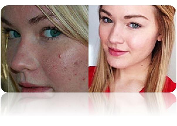 Loción rostro anti acné tónico facial espinillas astringente piel grasa
