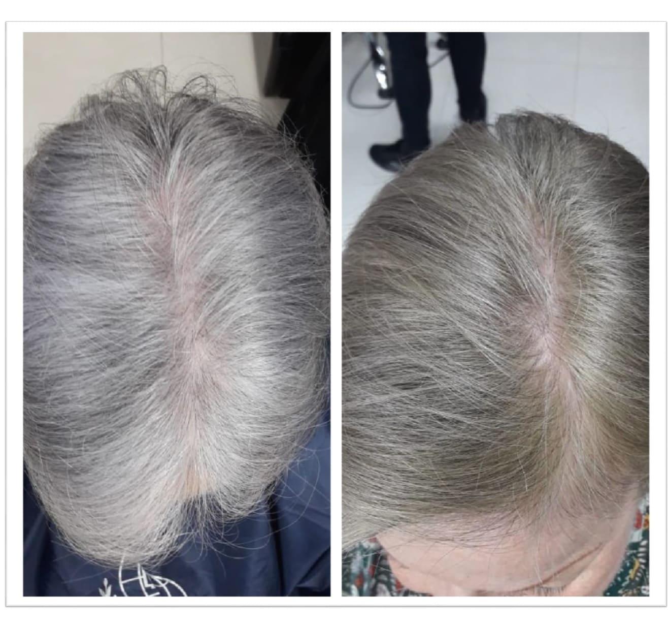 Tratamiento loción anticanas tónico natural Dr. Fontboté pack 3