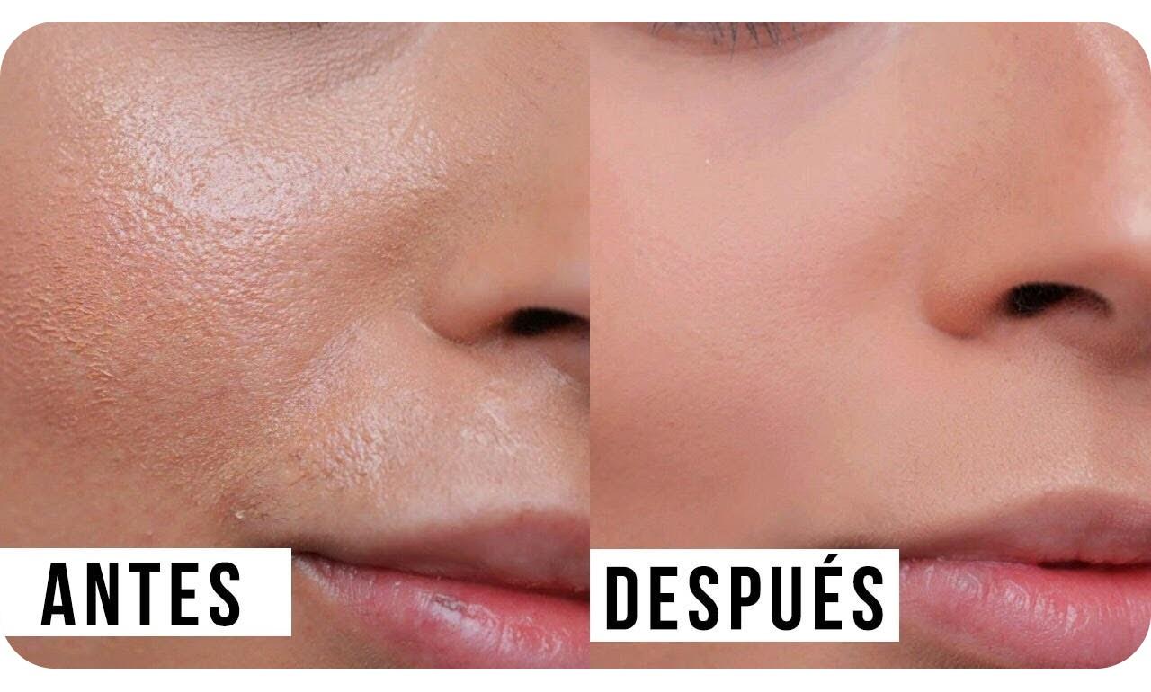 Gel limpiador espuma controlseb levinia limpiadora piel grasa o acné