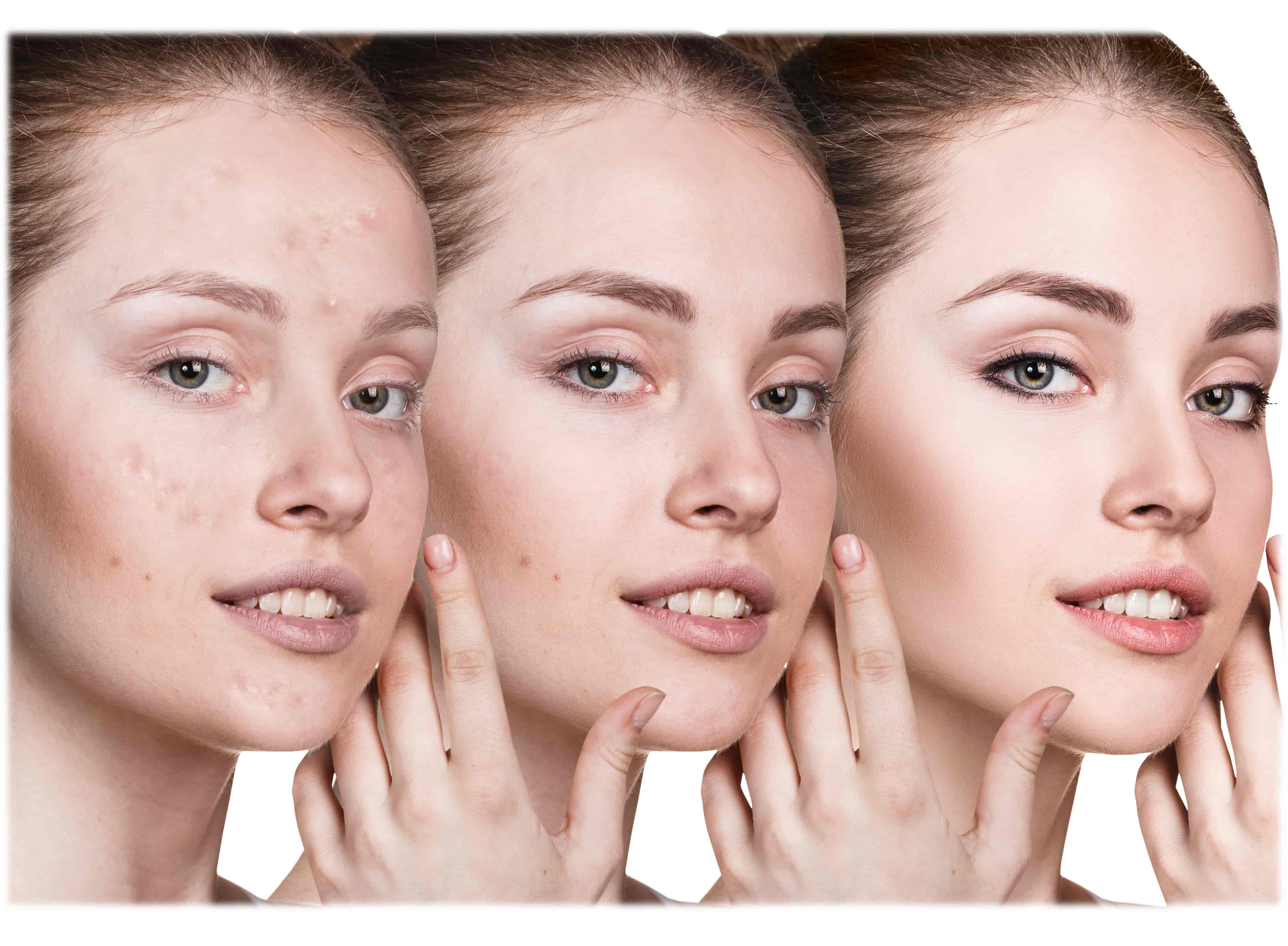 Gel anti imperfecciones levinia control seb seca espinillas rostro