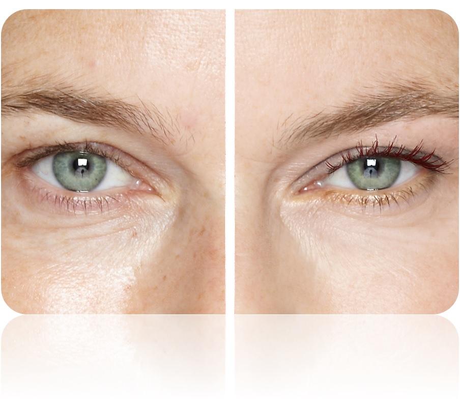 ¿Qué importancia o beneficios tiene el contorno para ojos y donde comprarlo?