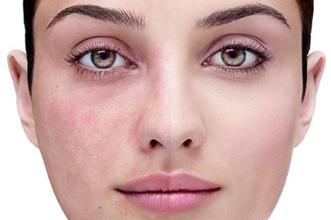 ¿Cómo cuidar una piel con rosacea y que productos existen para comprar?